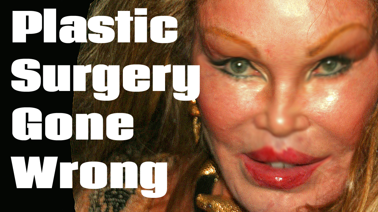 Celebrity Plastic Surgery Gone Wrong Dinocreek Com